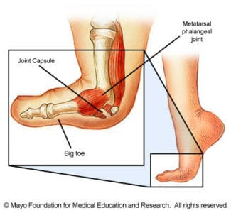 Turf Toe (Credit Mayo Foundation)